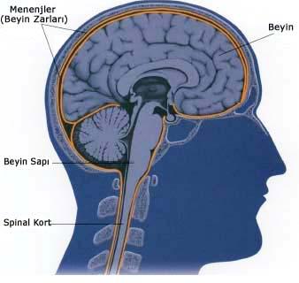 Beyin zarı iltihabı nedir? Sebepleri nelerdir?