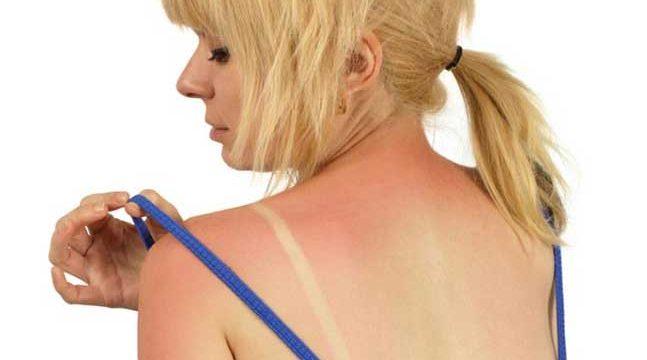 Güneş ışınlarının zararları