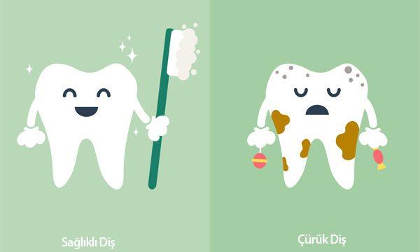 Diş Çürüğü Nasıl Tedavi Edilir?