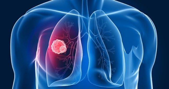 Akciğer kanseri
