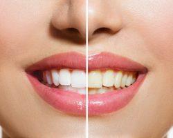 Dişlerimizi Nasıl Beyazlatabiliriz?